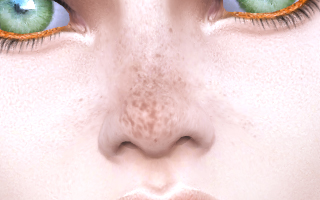 Freckles Overlay 02